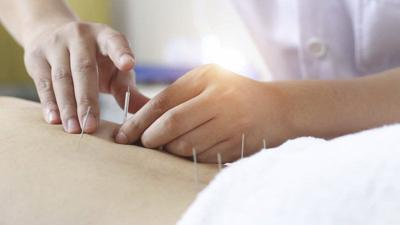JOEL MEKLER: Medicare coverage for acupuncture -- What you need to know