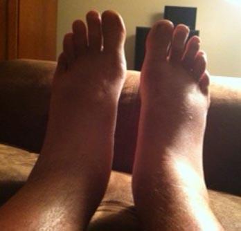 Ankles.jpg