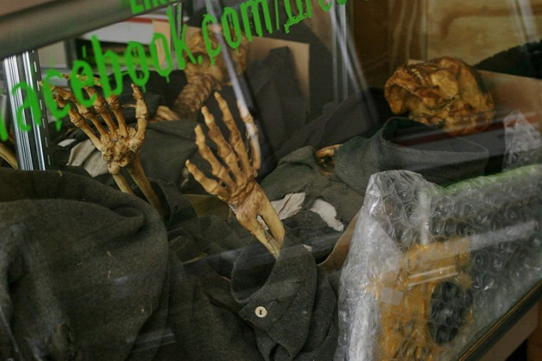 A Skeleton in the Collection