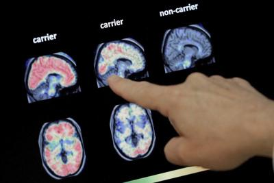 Drugs fail to slow decline in inherited Alzheimer's