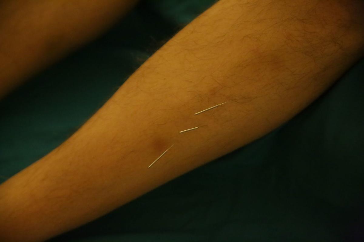 xxxx18-fea-acupuncture_0393.JPG