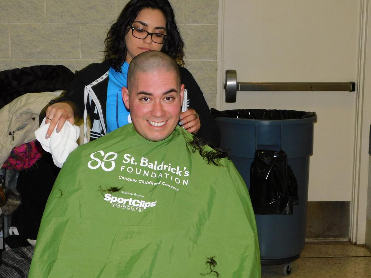 Smiling for baldness