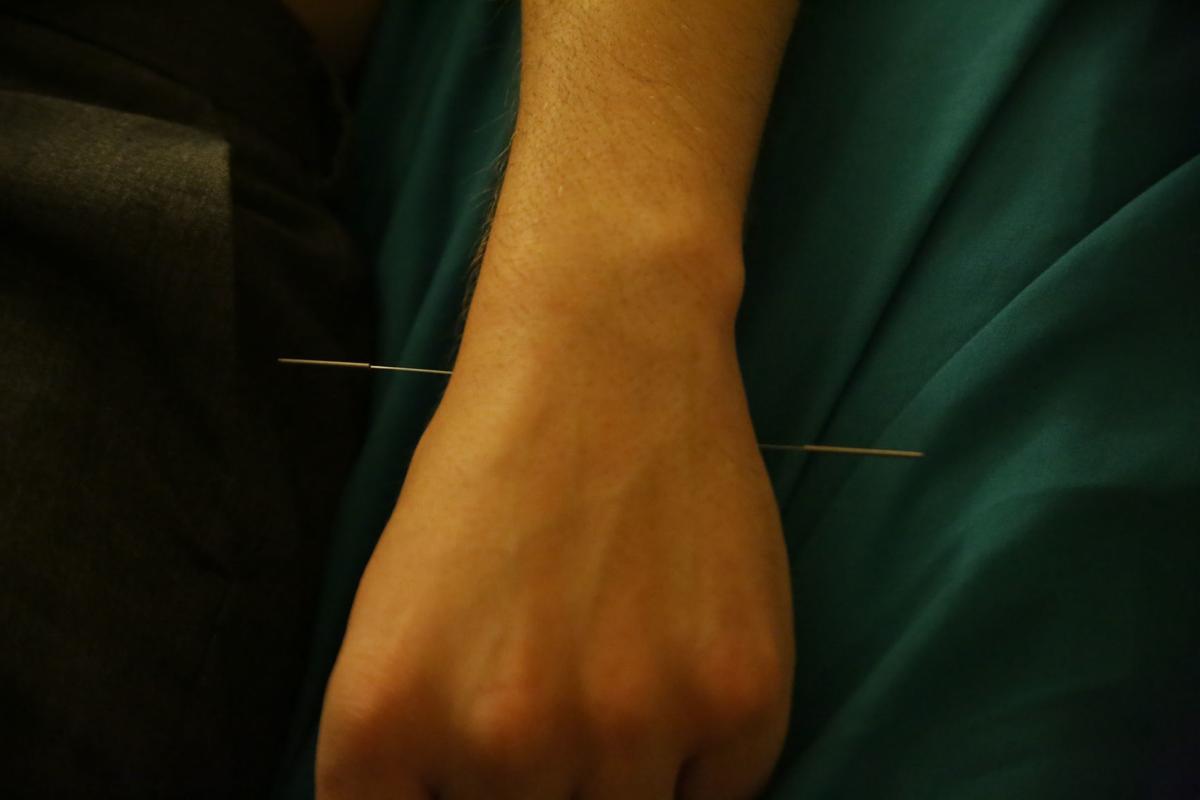 xxxx18-fea-acupuncture_0388.JPG