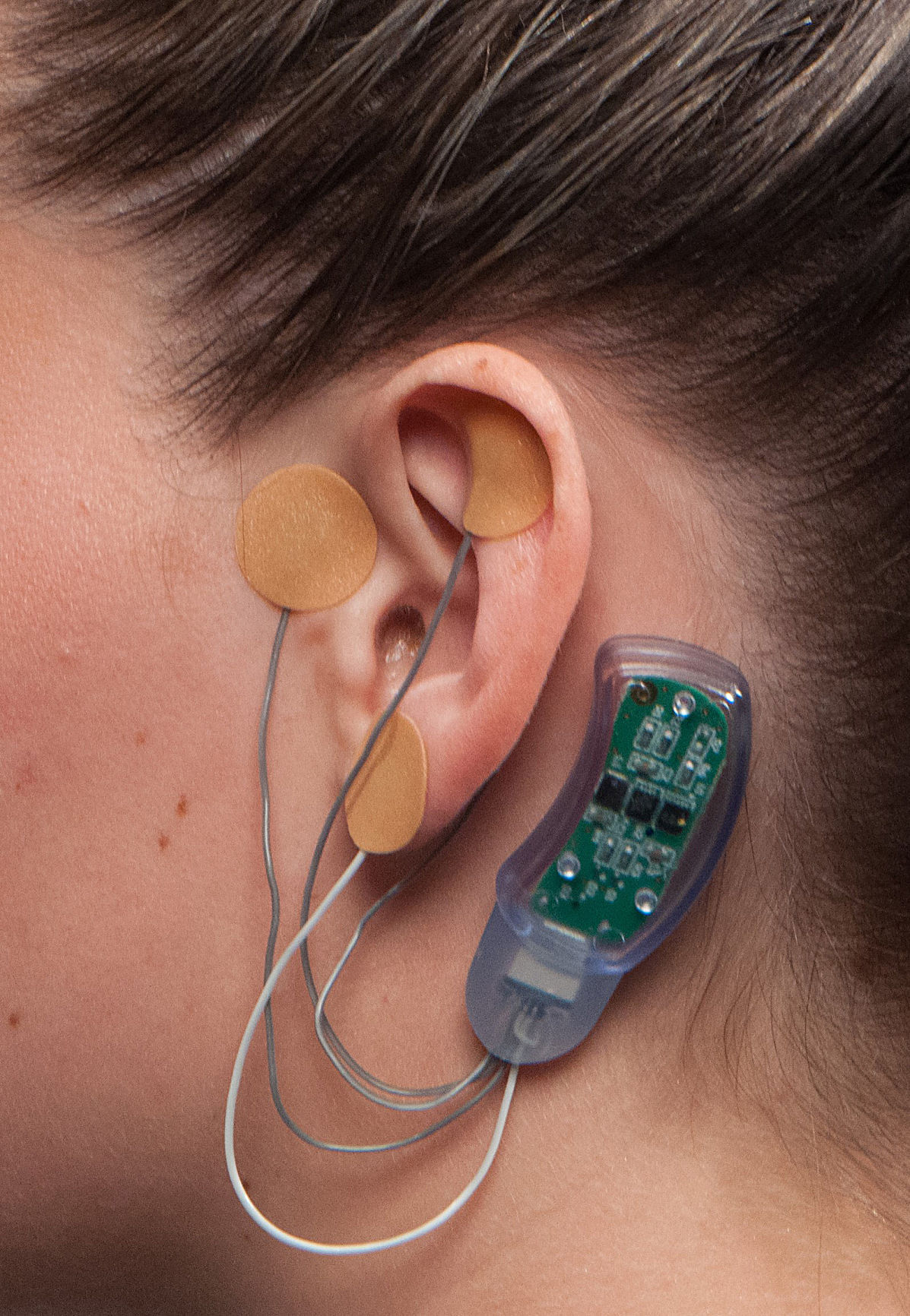 MED--Opioids-Nerve Stimulator
