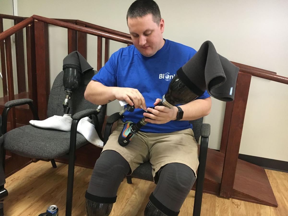 111717-fea-prosthetic