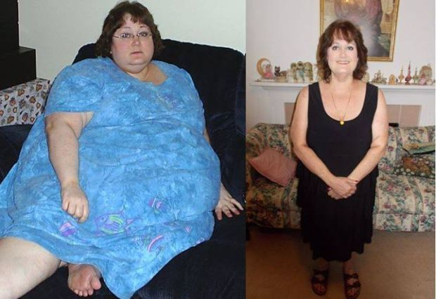 How To Drop 230 Pounds Without Weight Loss Surgery