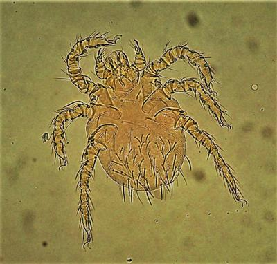 Chigger realities Given a chance, these baby mites will find you tasteful