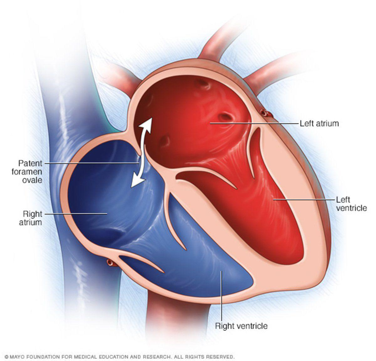 1 In 5 People Have Hole In Heart  Closure May Prevent