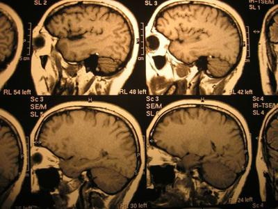 """Alzheimer's disease is not a normal part of """"getting old""""."""