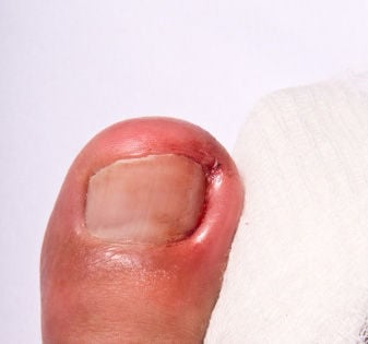 Let the pros perform your ingrown toenail surgery | Foot & Ankle ...