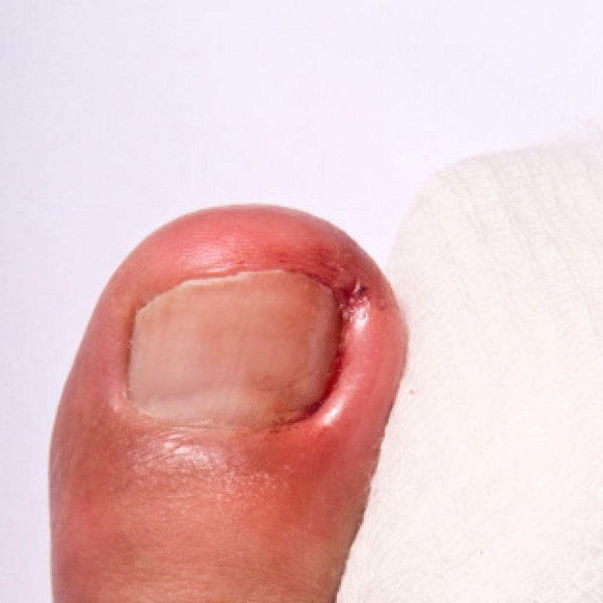 Still surgery toe numb toenail after ingrown Toe still