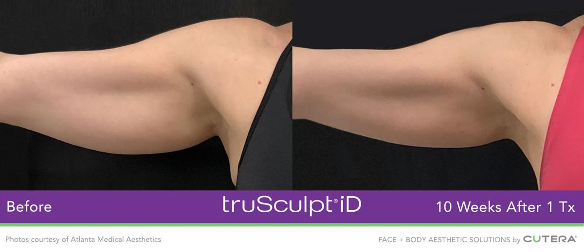 New Leaf Before And After Upper Arm