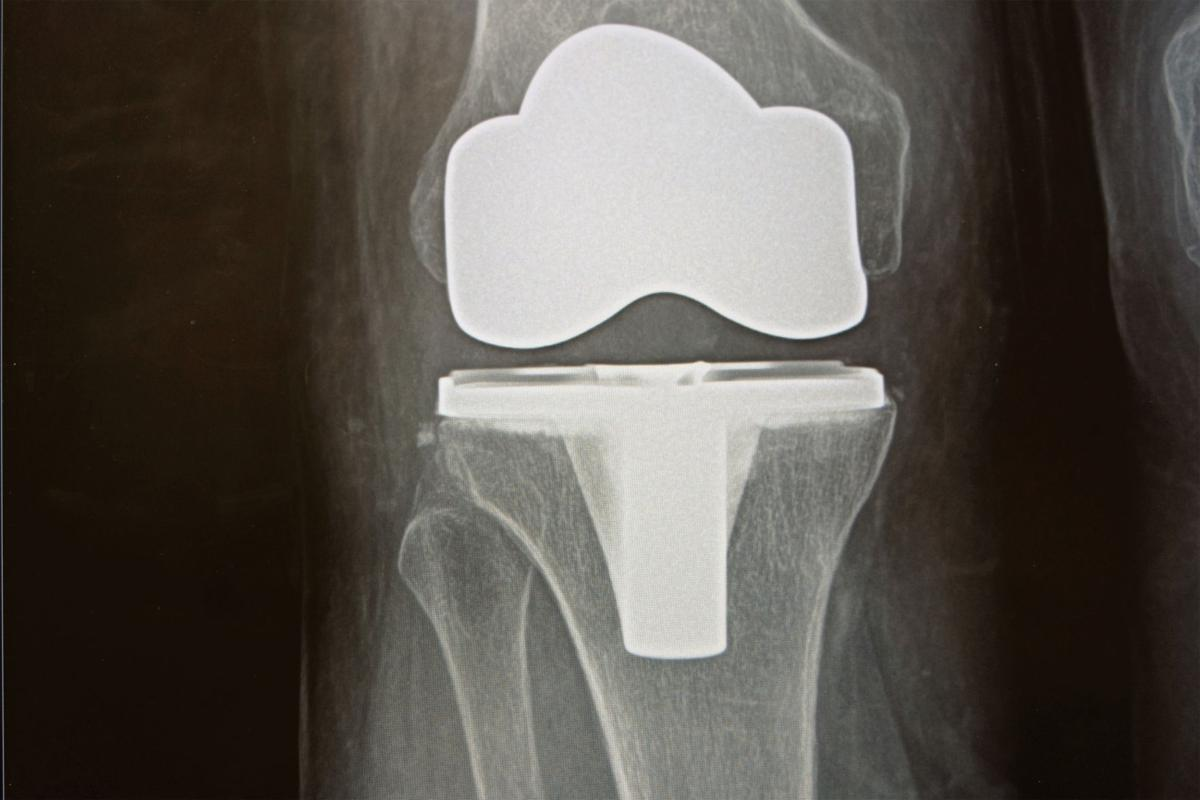 X-ray of knee implant
