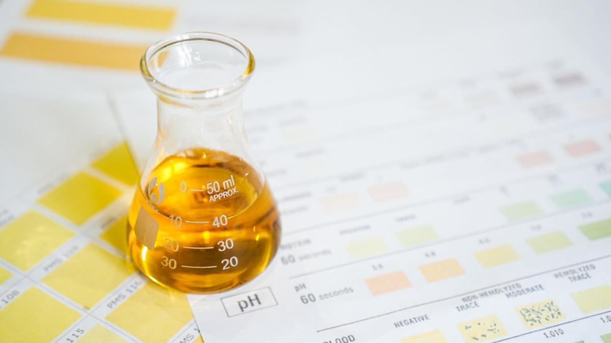 medicine-cabinet-urine-20210707