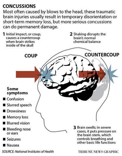 Concussion explainer graphic