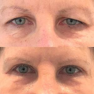In-office cosmetic procedures for seniors 5