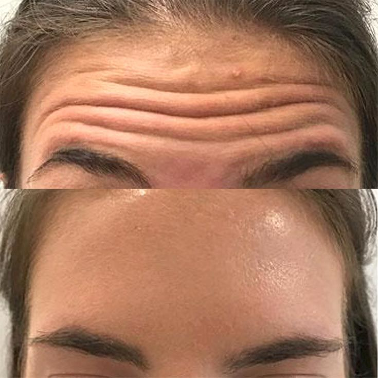 In-office cosmetic procedures for seniors 1