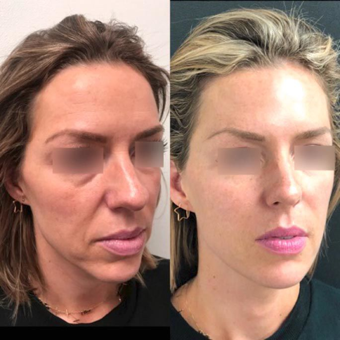 In-office cosmetic procedures for seniors 2