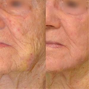 In-office cosmetic procedures for seniors 3