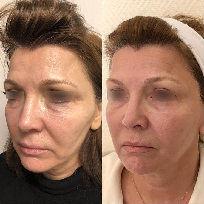 In-office cosmetic procedures for seniors 4