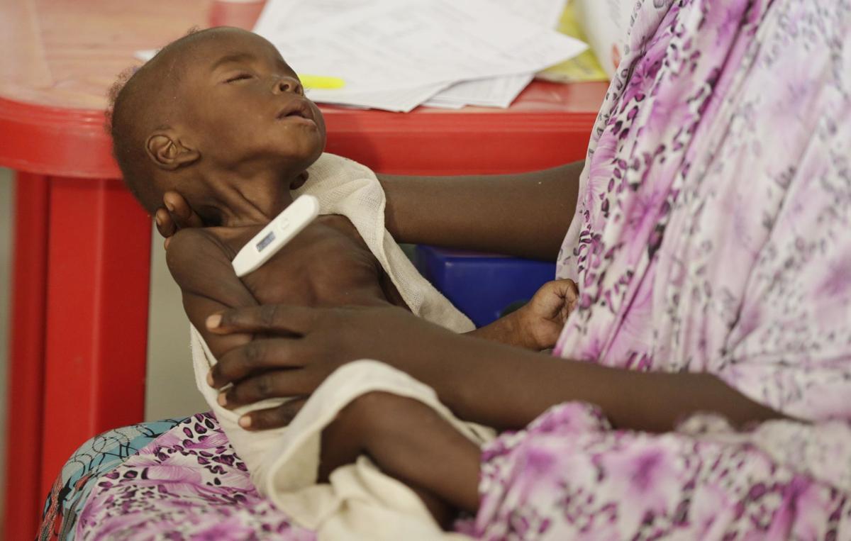 APTOPIX Nigeria Starving Children
