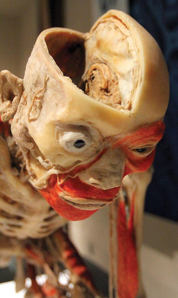 """Auto Repair Chicago >> """"Bodies Revealed"""" exhibit : Gallery"""