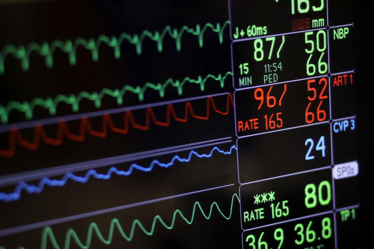 Heart surgery