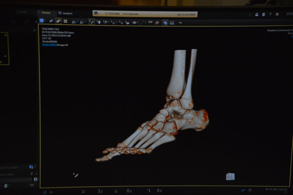 CT Scanned Foot.JPG