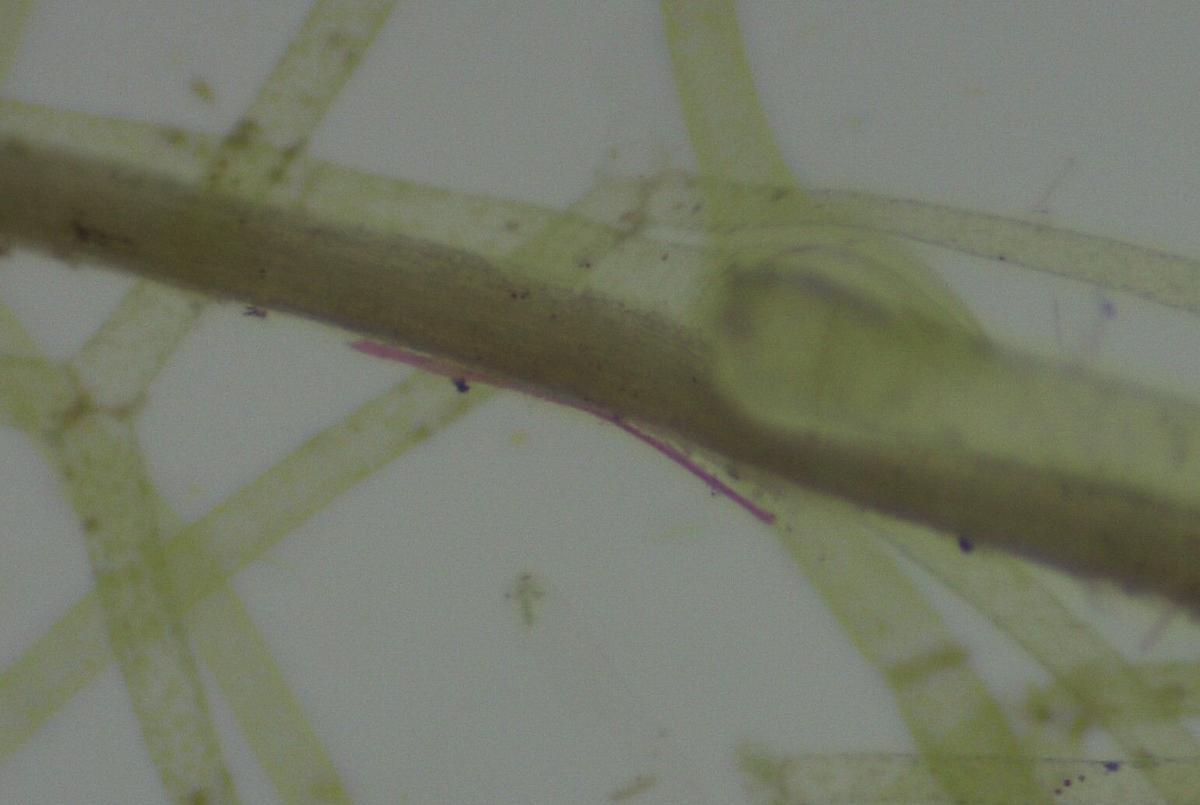 cladophora microplastics sample photo 1