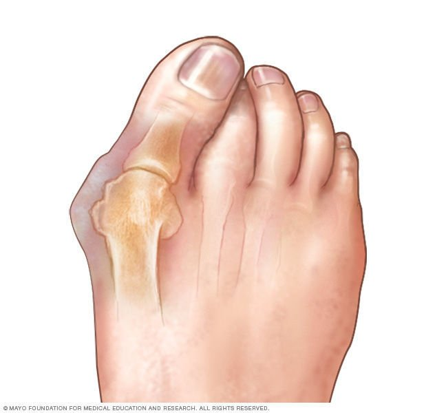 Bunion: The best shoes for healthy feet
