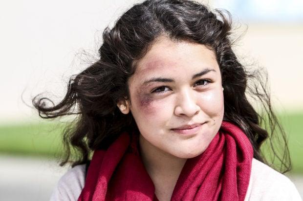 Everything about Black Eye | Healthspectra