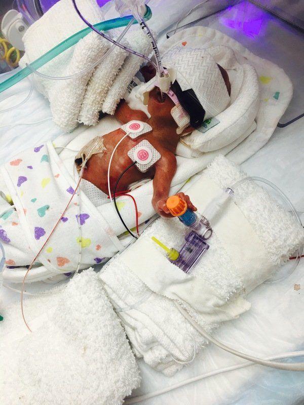 MIRACLE BABY:Strunkfamilyfinally welcomes home baby bornat 1 pound, 3 ounces
