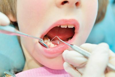 Silver Diamine Fluoride Offers Alternative Treatment For Dental