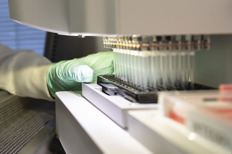 Alzheimer treatment wins FDA approval