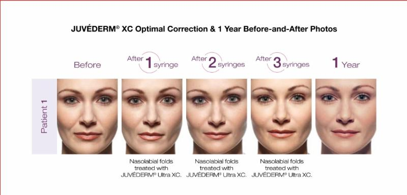 Juvederm XC Optimal Correction at RoseHill MedSpa
