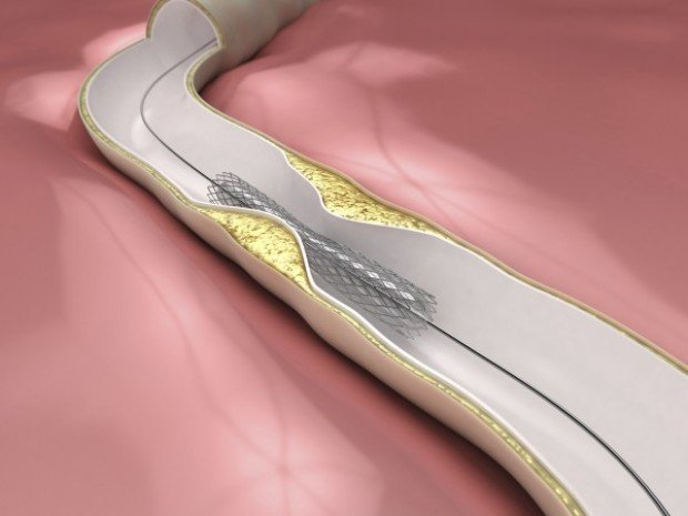 Heart Savers Stents Continue To Evolve