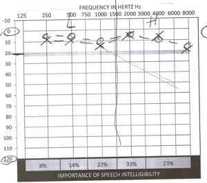 Hearing test results