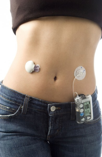 insulin pumps make life easier for diabetics special sections