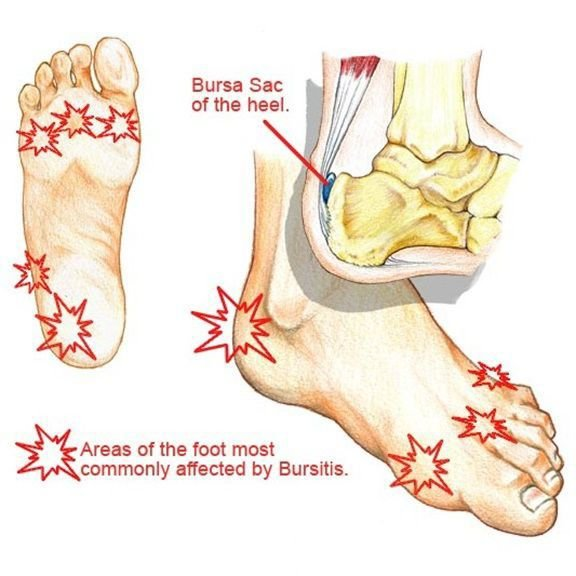 Eliminate Foot Pain Without Surgery Or Injections Advertorial Siouxcityjournal Com