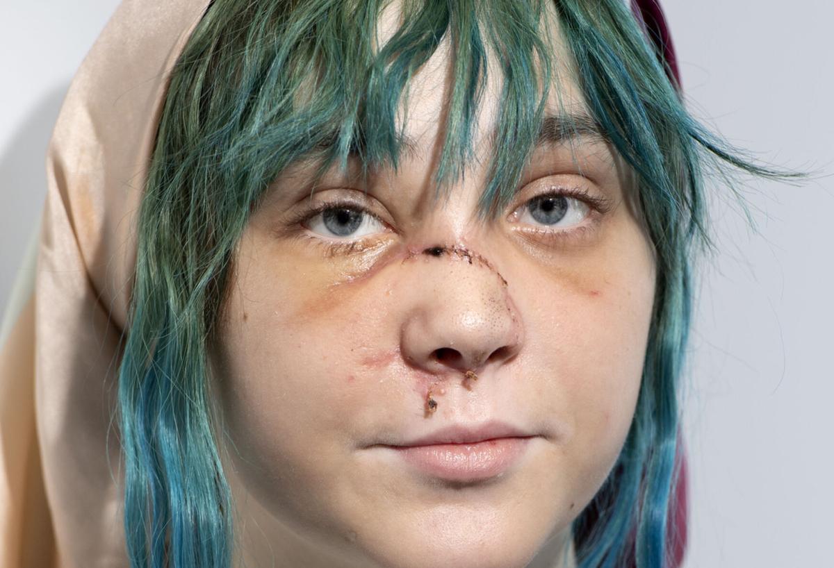 Elise Poole protest injury