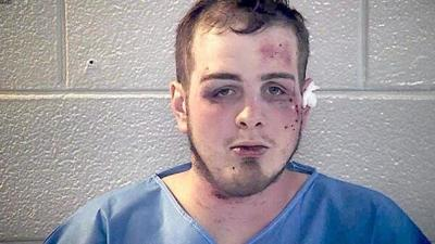 Vermont manpleads not guilty to charges in altercation with police