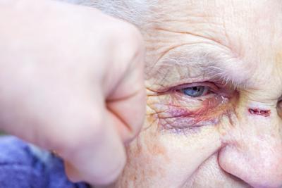 Punching an injured elderly woman