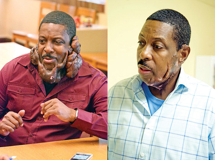 Tony Perkins before and after keloid surgery