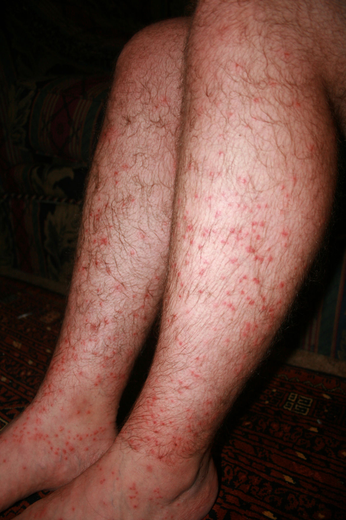 what do chiggers bites look like