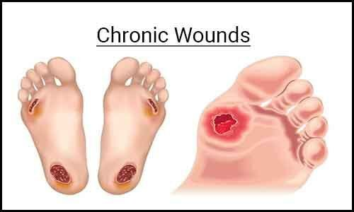 Treatment of chronic wounds