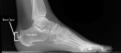 Painful Bone Spurs Should Be Addressed News