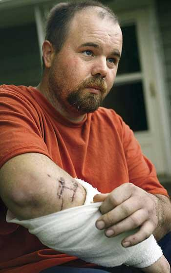 Oregon man tells of life-and-death struggle with bear