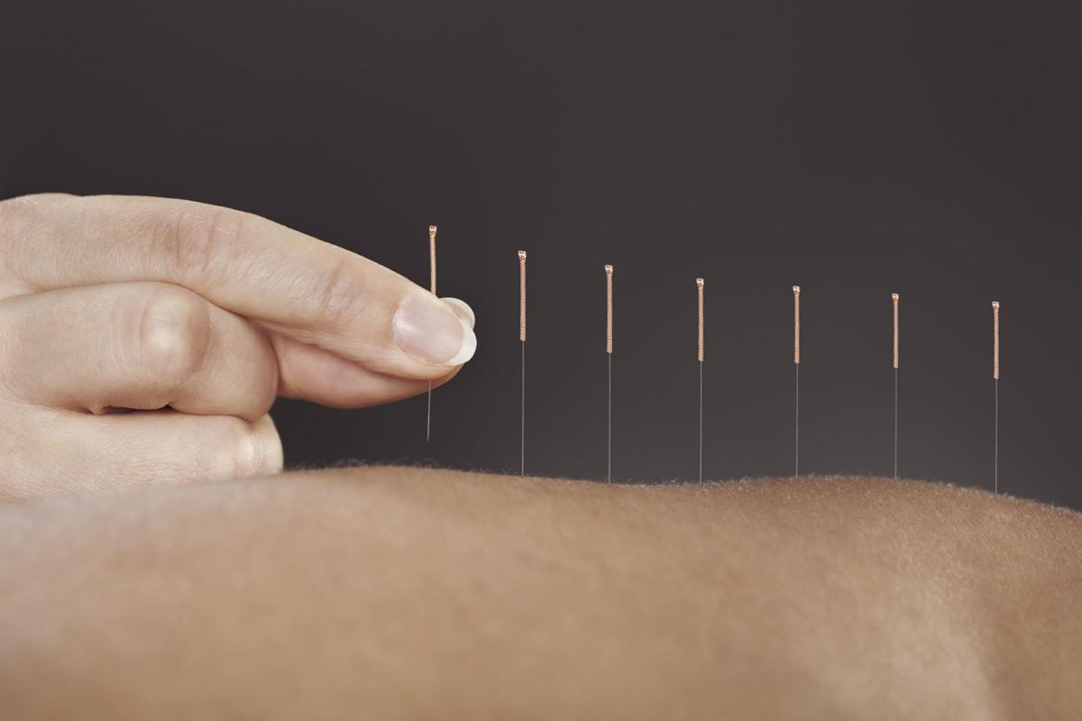 Patients Find Relief In Ancient Practice Of Acupuncture Life The Brunswick News
