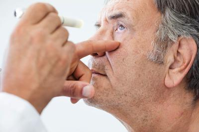 CNS Cataracts