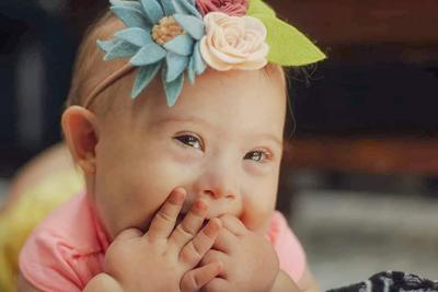 St  Marys baby chosen for National Down Syndrome Society's
